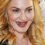 麦当娜金色牙套